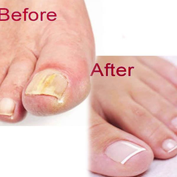 Nail Fungus Laser Treatment Salonanspa Com